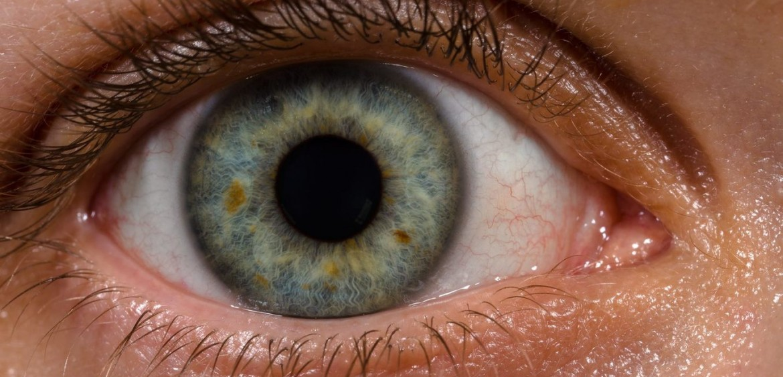 Diabetic Eye Disease — Norway Eye Care